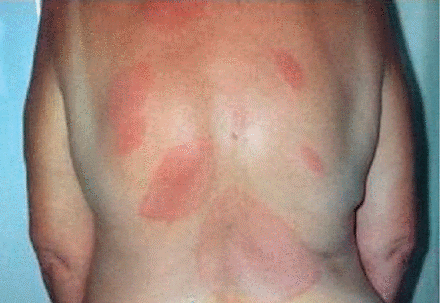 Satellite rashes